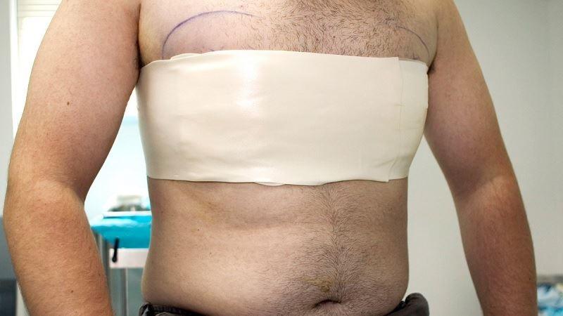 man boobs surgery